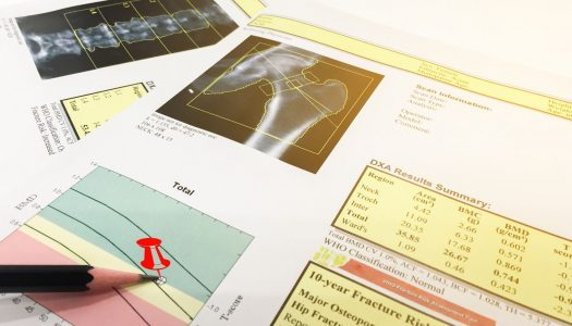 Nowoczesne metody analizy składu ciała